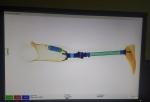 Savaitės topas – išmanusis protezas ir įdaryti balionai